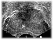 Urology Specialist In Prostate Enlargement Cancer