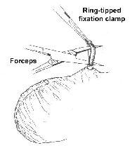 Vasectomy - non scalpel, scalpeless, no scalpel, male ... No Scalpel Vasectomy